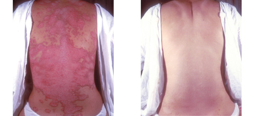 best emollient cream psoriasis